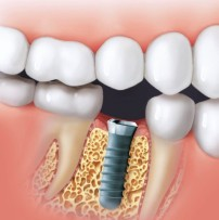 Burnaby Dental Implant