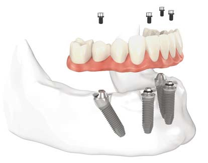 Implant Dentistry Vancouver