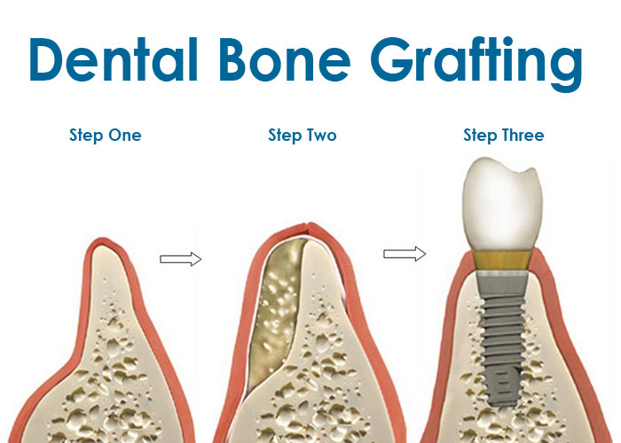 Bone Grafting|Vancouver General Dentistry | Dr. David Huh ...