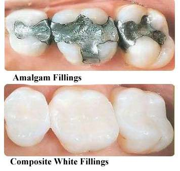white-fillings1